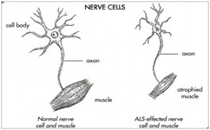 Lateral Sclerosis(Motor Neuron Disease)Amyotrophic