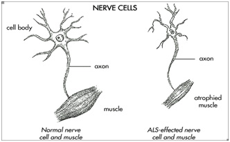 Amyotrophic lateral sclerosis for Motor neurone disease support
